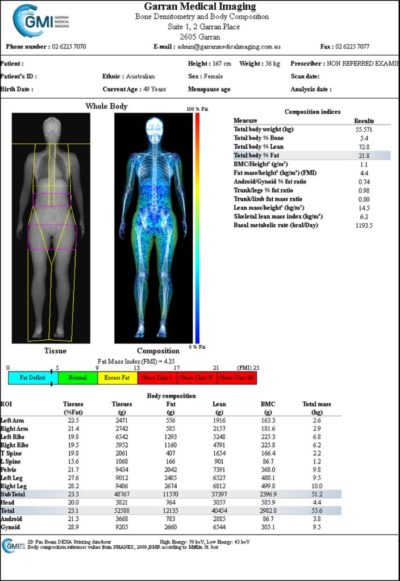 DEXA scans for Bone Densitometry and Whole Body Composition Analysis